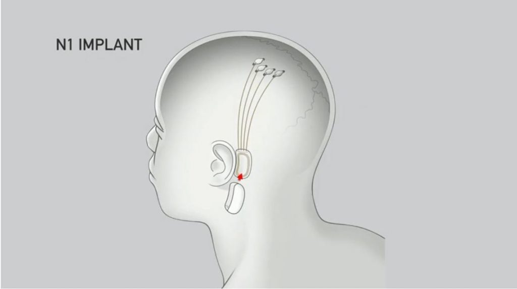 Elon Musk's Neuralink to empower human brains with AI | DIMENSIONLESS TECHNOLOGIES PVT.LTD.